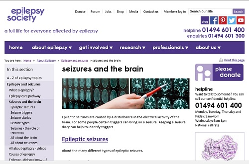 Epilepsy Society: image of brain scans